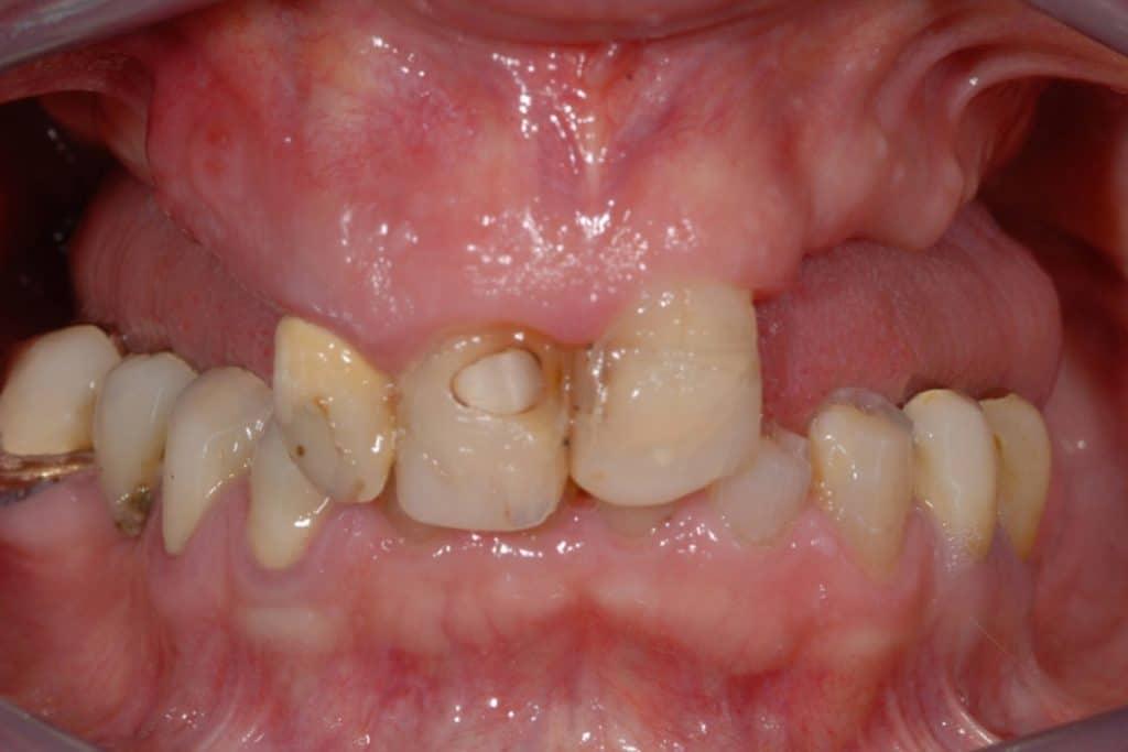 CASI X SITO.005 1 1024x683 - Scarso osso residuo e canino incluso intervento a carico immediato