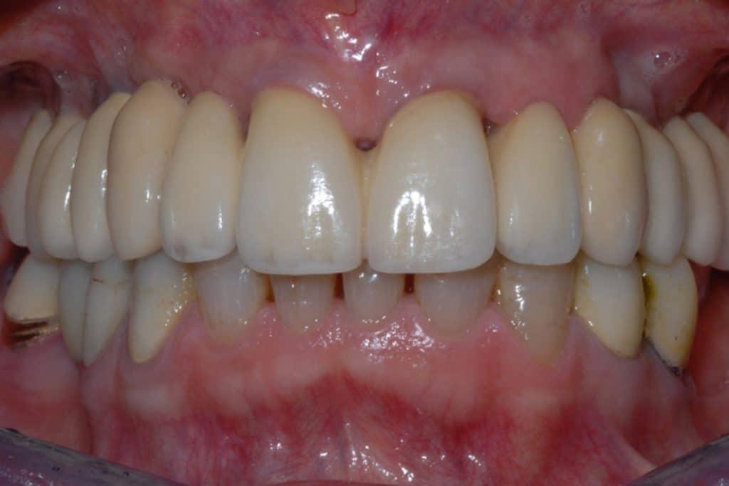 CASI X SITO.009 1024x683 - Scarso osso residuo e canino incluso intervento a carico immediato