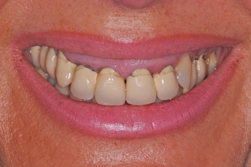 1 il sorriso iniziale 1024x683 - Implantologia ed odontoiatria estetica per un nuovo sorriso