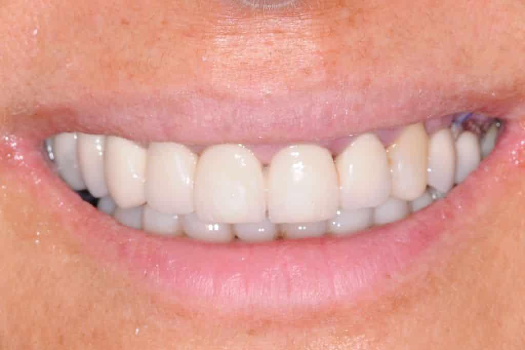 il sorriso dopo 24 ore dall intervento 1024x682 - Implantologia ed odontoiatria estetica per un nuovo sorriso