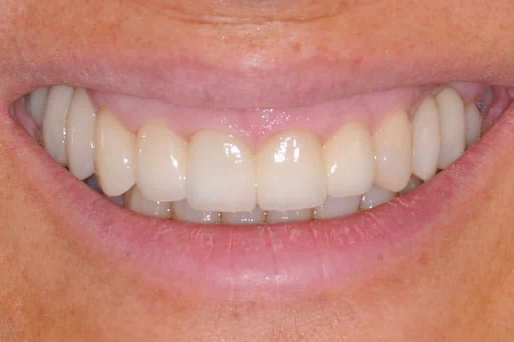 il sorriso dopo la riabilitazione finale 1024x683 - Implantologia ed odontoiatria estetica per un nuovo sorriso