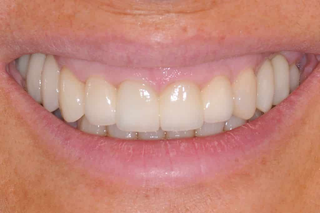 implantologia sorriso dopo