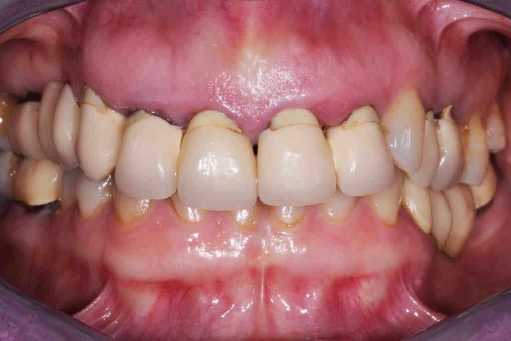l1 a situazione iniziale 1024x683 - Implantologia ed odontoiatria estetica per un nuovo sorriso