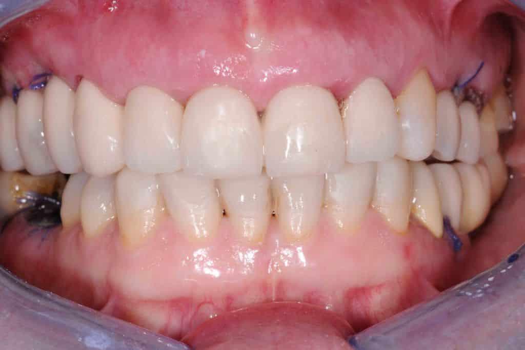 provvisorio dopo 24 ore 1024x683 - Implantologia ed odontoiatria estetica per un nuovo sorriso