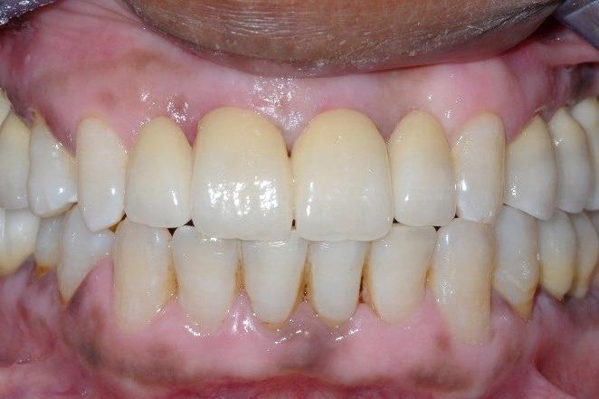 implantologia finale