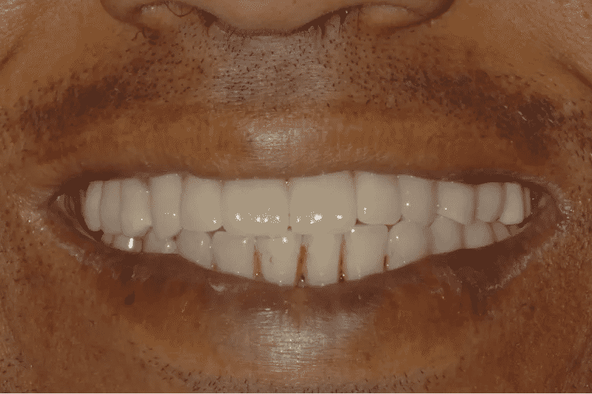 implantologia riabilitazione definitiva il sorriso finale