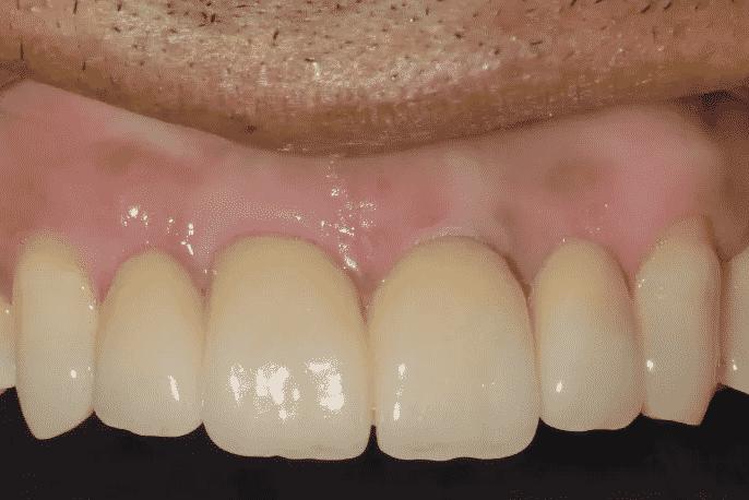 implantologia la riabilitazione definitiva ceramica