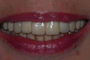 implantologia con piorrea il sorriso finale