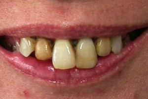 implantologia con piorrea il sorriso iniziale
