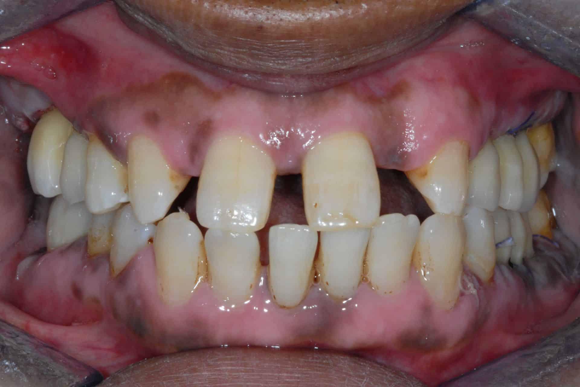implantologia caso iniziale