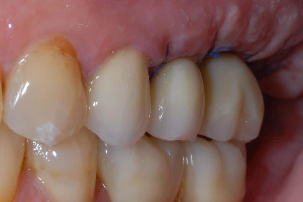 implantologia premolare dopo
