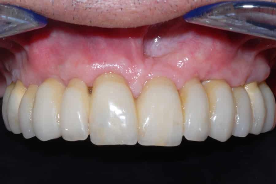 vecchie corone e parodontite avanzata