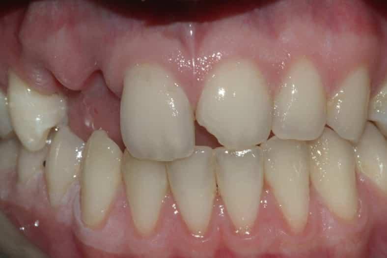 Perdita di due denti, carico immediato situazione iniziale