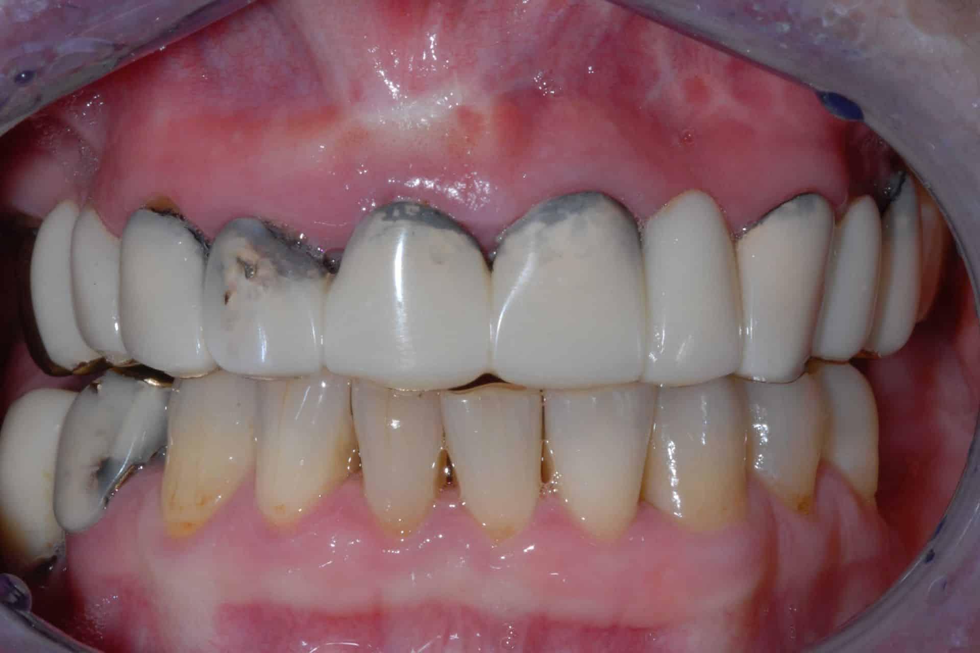 implantologia arcata superiore prima