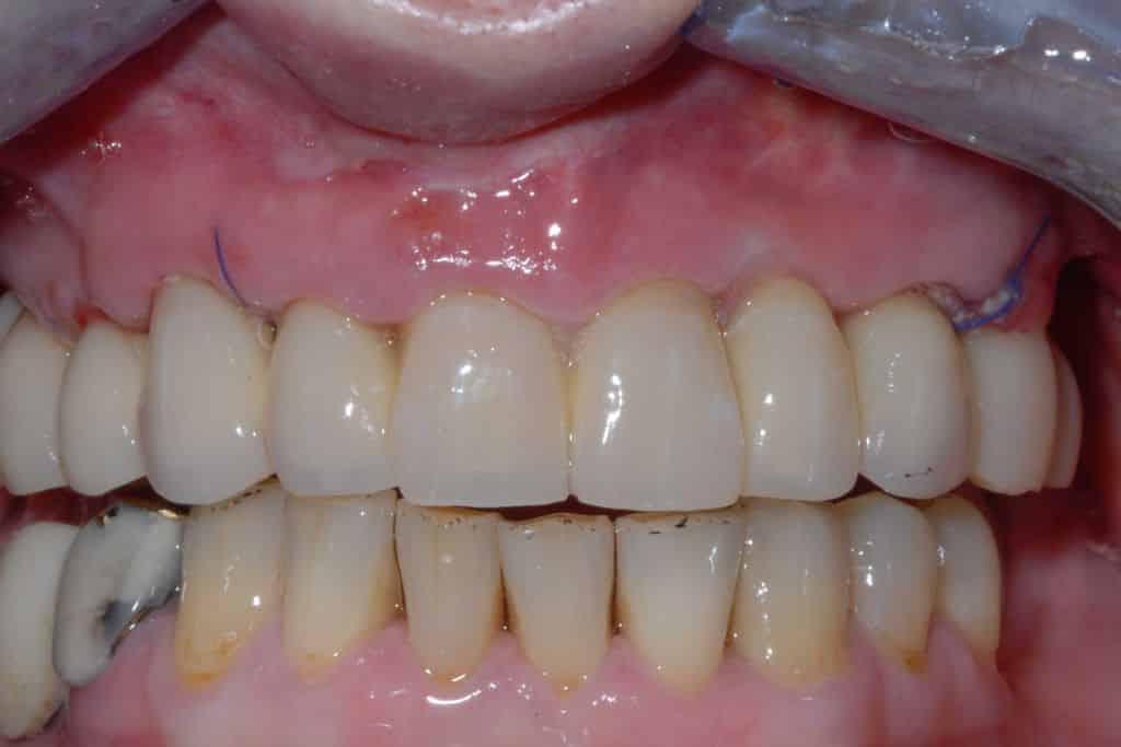 Implantologia 24 ore dopo
