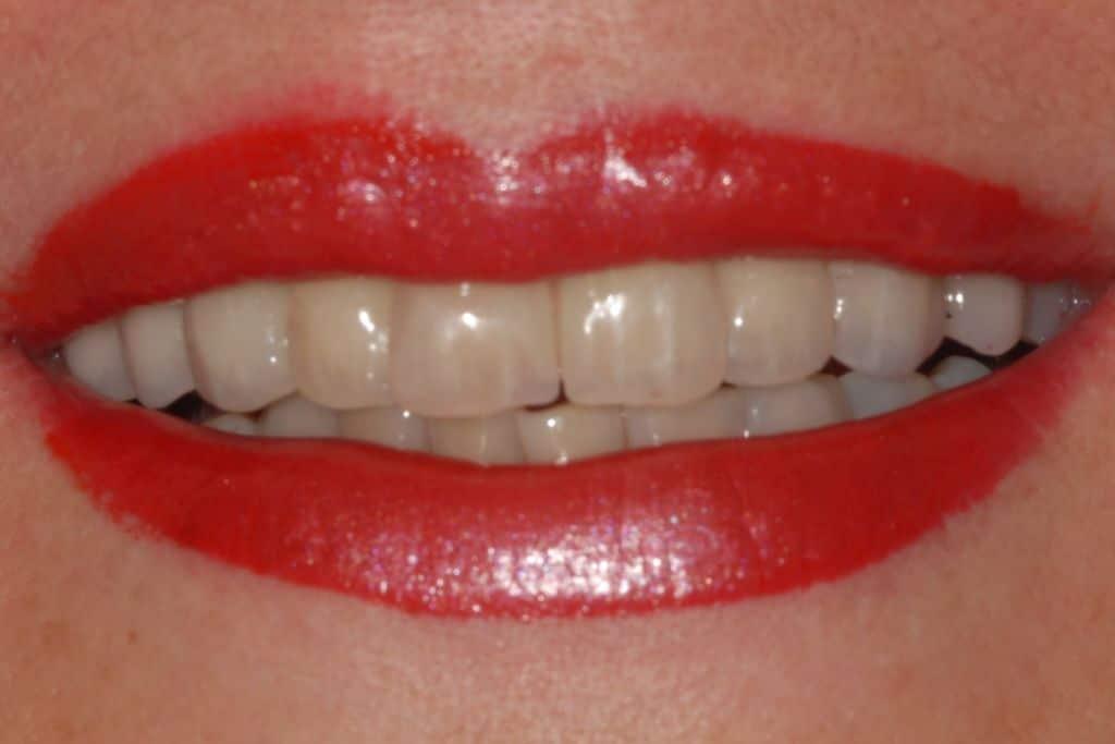 Implantologia sorriso finale