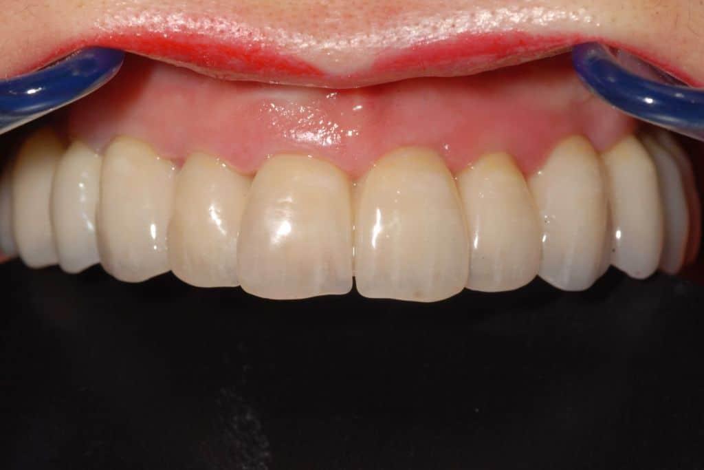 DSC 3911 1024x683 - Implantologia All-on-4®: non mi piace la finta gengiva, si può rimediare?