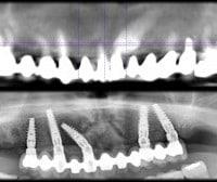 1 300x1681 200x168 - Canino incluso e impianti dentali