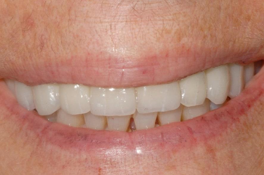 canino incluso implantologia sorriso finale