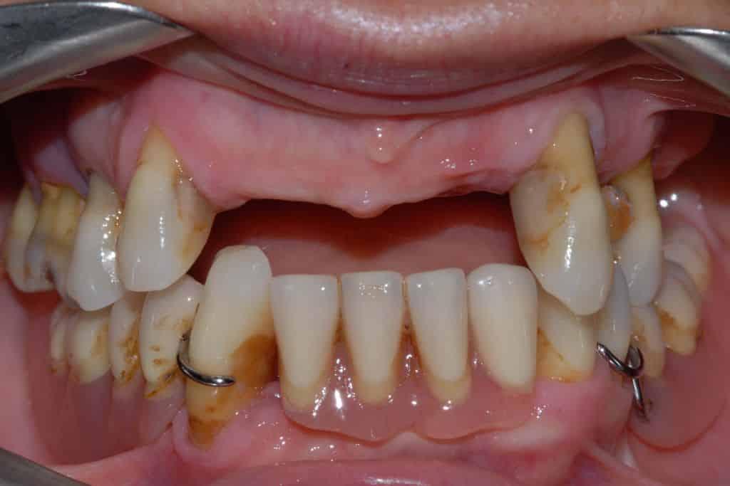 implantologia con parodontite prima