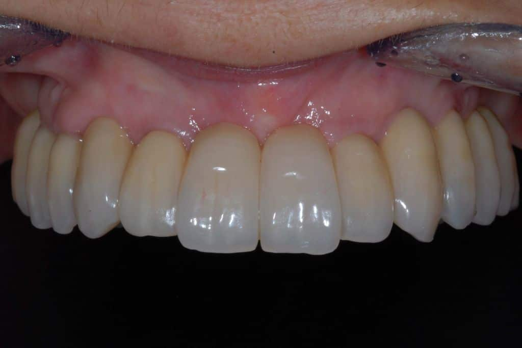 implantologia con parodontite dopo