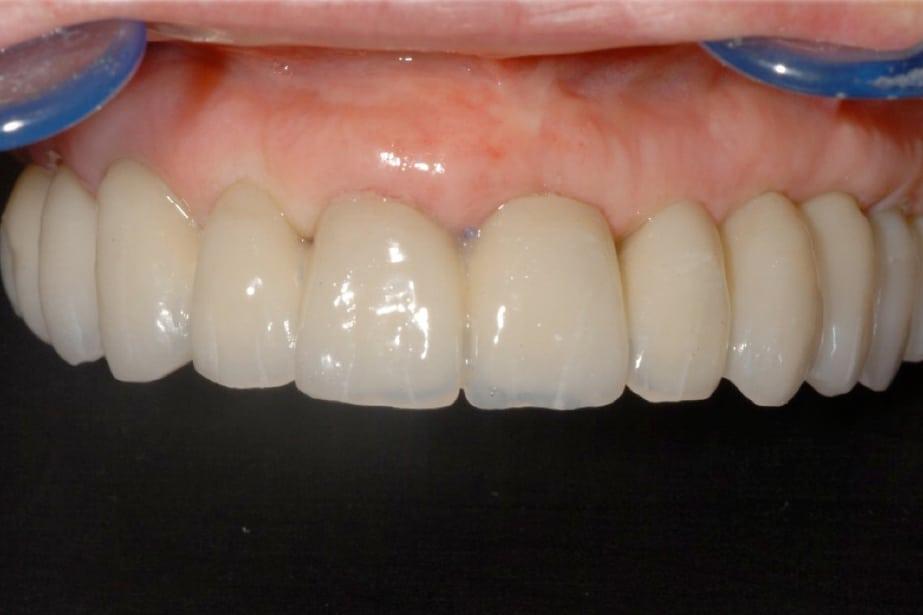 piorrea implantologia a carico immediato finale - Canino incluso e impianti dentali