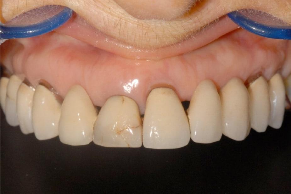 piorrea implantologia a carico immediato iniziale - Canino incluso e impianti dentali