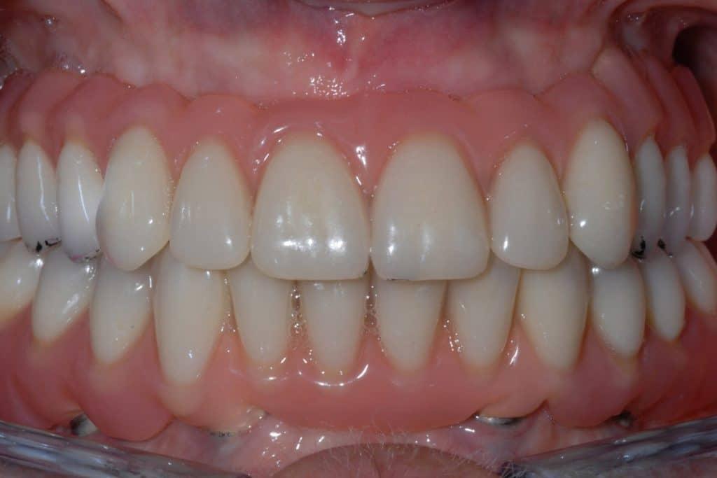 All on 4 riabilitazione con finta gengiva 1024x683 - Implantologia All-on-4®: non mi piace la finta gengiva, si può rimediare?