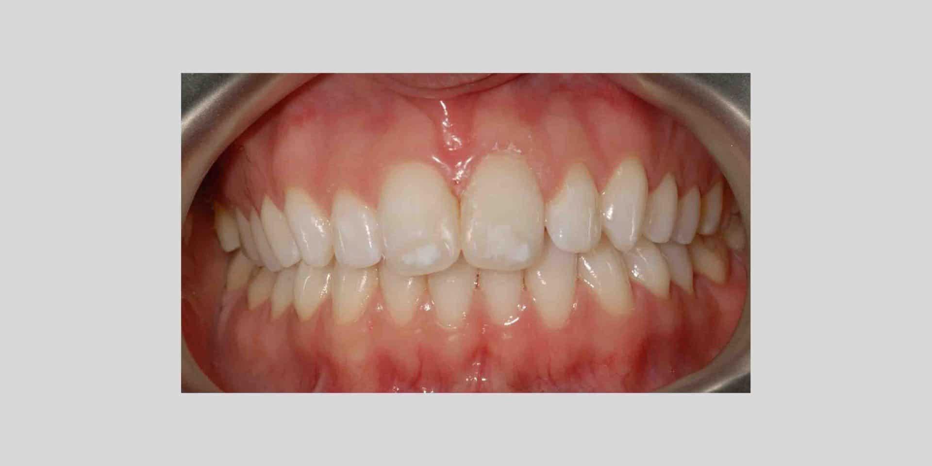carie 2 - Carie dentale prevenire con un sorriso