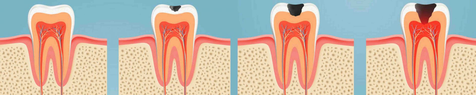 carie - Carie dentale prevenire con un sorriso