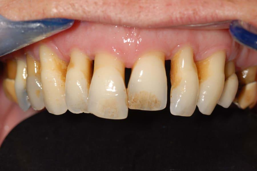 implantologia carico immediato inizio - Parodontite e impianti a carico immediato in paziente con piorrea