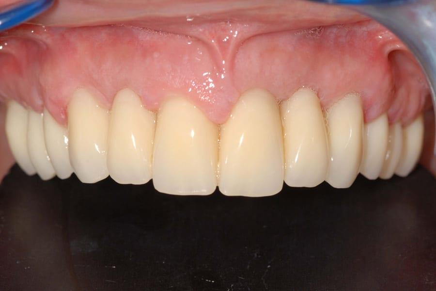implantologia carico immediato provvisorio - Parodontite e impianti a carico immediato in paziente con piorrea