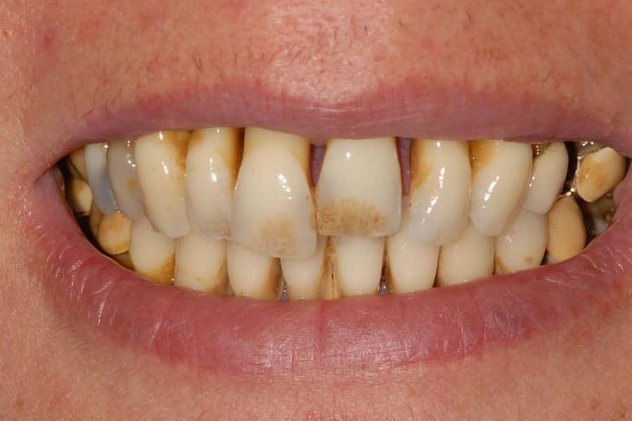 implantologia carico immediato sorriso inizio - Parodontite e impianti a carico immediato in paziente con piorrea