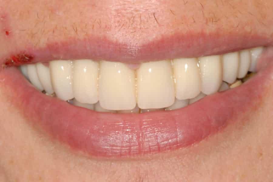implantologia carico immediato sorriso provvisorio - Parodontite e impianti a carico immediato in paziente con piorrea