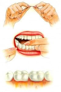filo interd1 200x300 - Igiene dentale un impegno quotidiano contro la carie