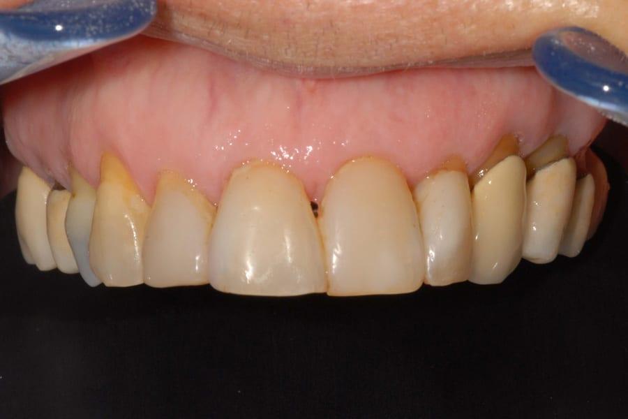 denti mobili e piorrea