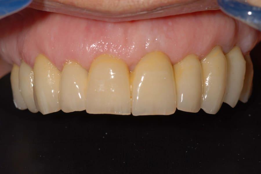 denti mobili e piorrea poco osso definitivo