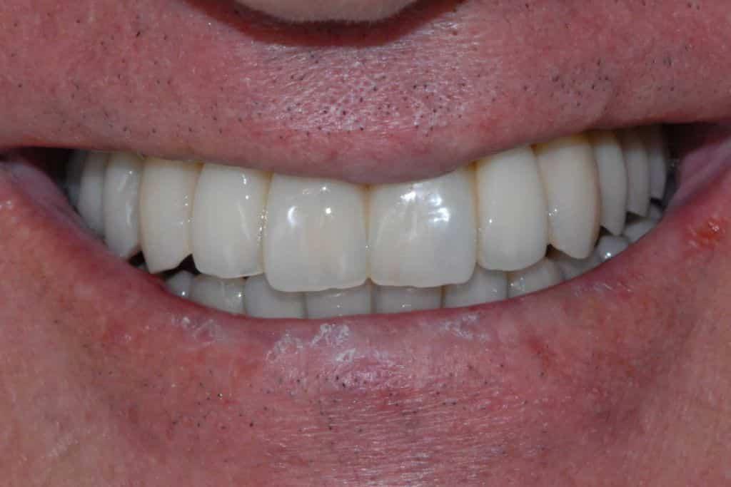 implantologia in paziente con protesi mobile, il sorriso del paziente.