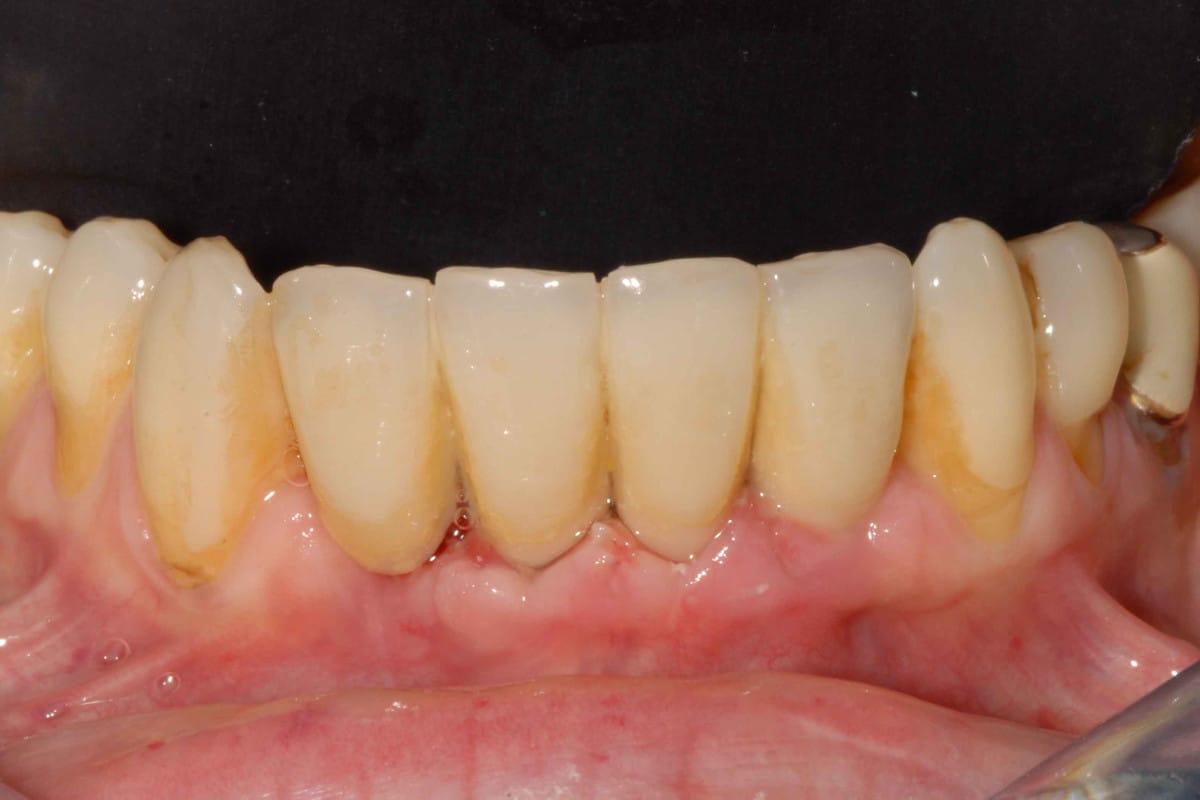 DSC 0472 - Parodontite su incisivi inferiori: intervento mini invasivo