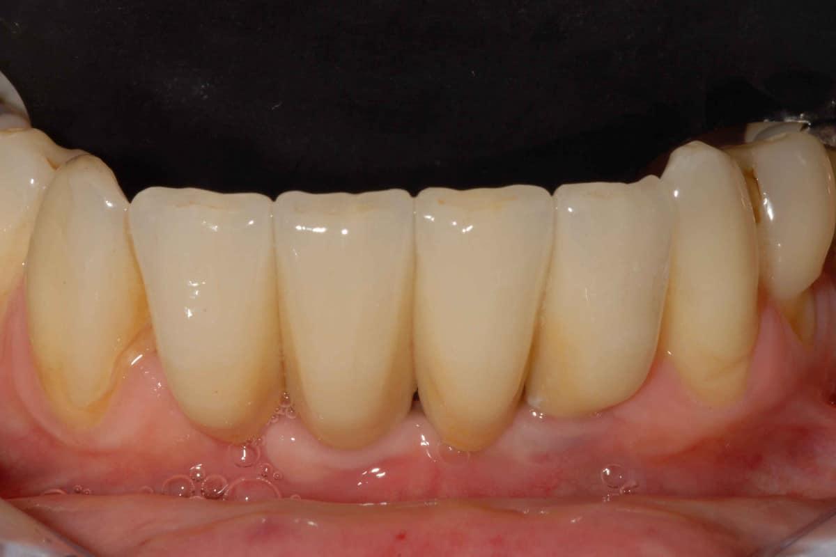 DSC 12531 - Parodontite su incisivi inferiori: intervento mini invasivo
