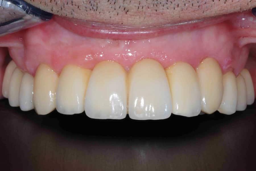 La riabilitazione finale del paziente con impianti dentali