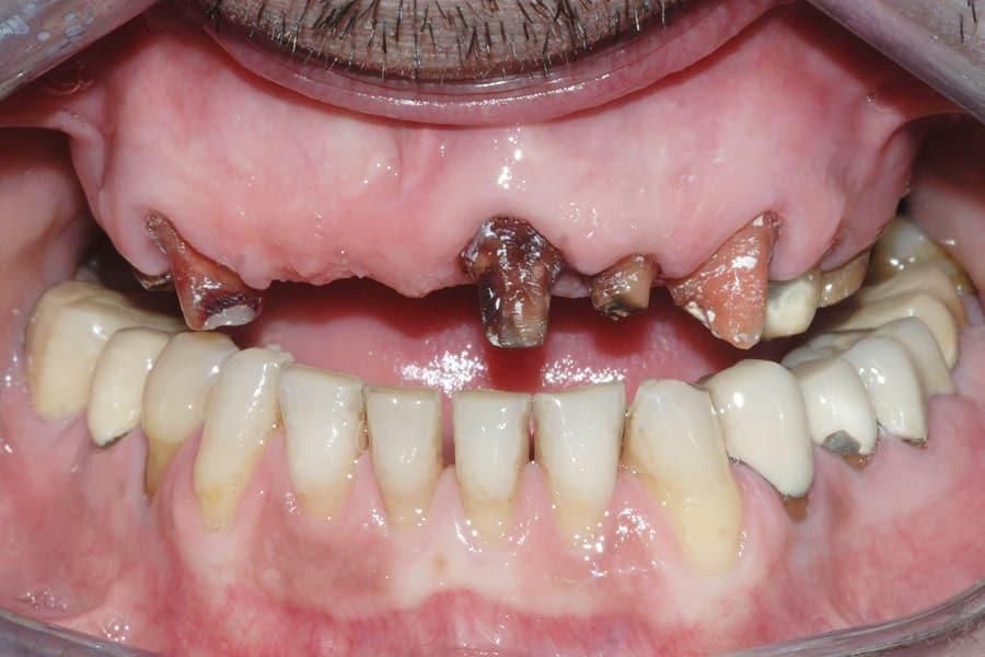 Implantologia prima