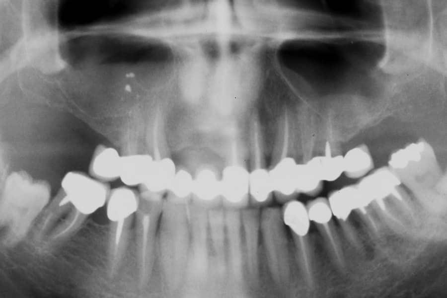 Implantologia iniziale opt