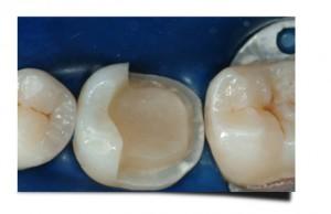 Preparazione dente