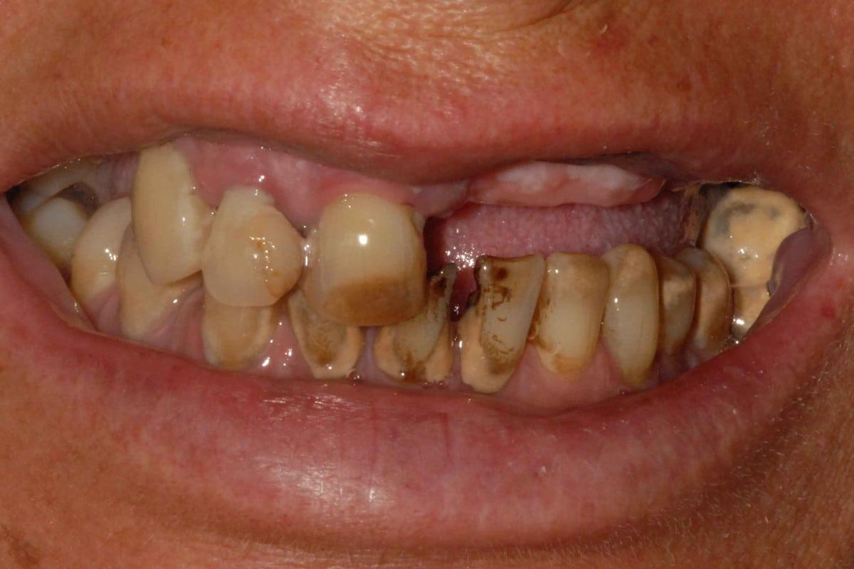 Parodontite grave prima