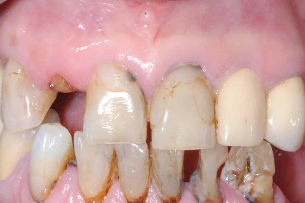 DSC 0015 - Implantologia in paziente con poco osso e carie