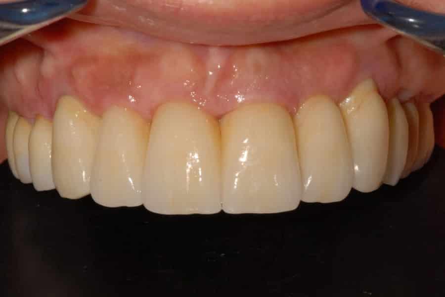 Parodontite e implantologia riabilitazione definitiva