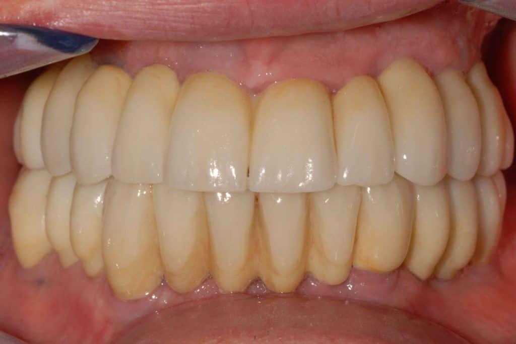 parodontite grave la riabilitazione definitiva tre anni dall'intervento.