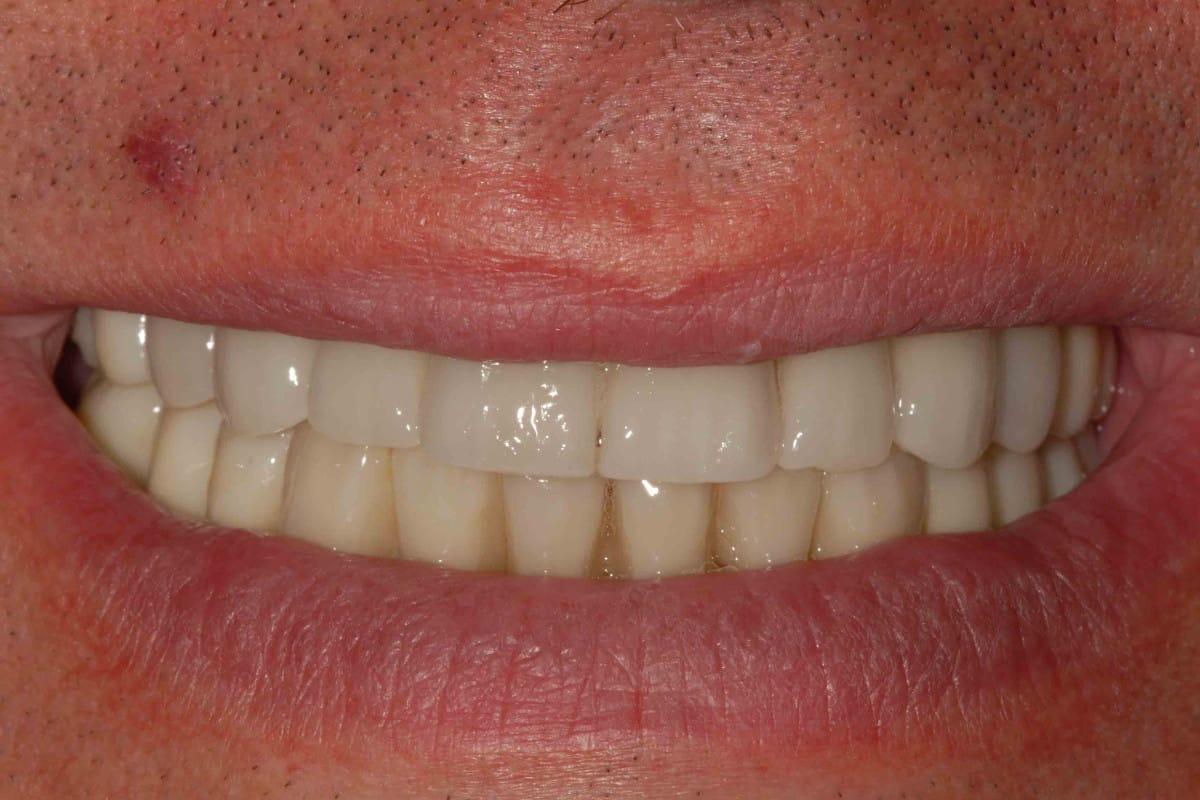 parodontite grave sorriso finale