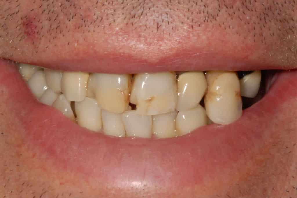 Parodontite grave il sorriso